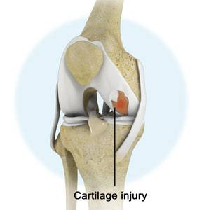 Knee Cartilage Injuries