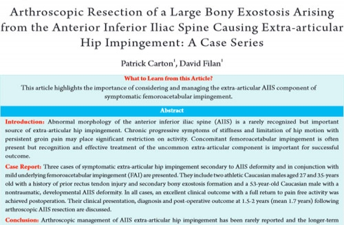 Extra-articular hip impingement – Case series